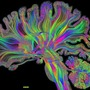 Stupid Brain love stories