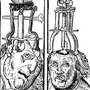 Trepanation  tragedy stories