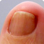 What is a nail parasitic disease? women disease stories